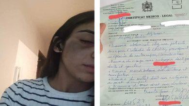 صورة ولاية أمن الرباط تقدم توضيحات بخصوص تعرض أستاذة للتحرش من طرف أحد عناصر الشرطة