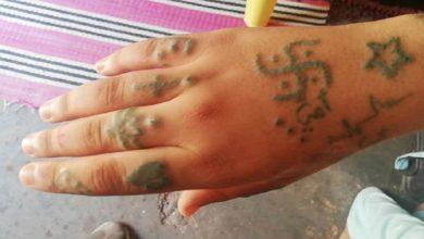 """صورة صاحبة """"الوشم"""".. ضحية أشهر عملية اغتصاب في المغرب تتنازل عن الدعوى!"""