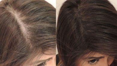 صورة علاجات طبيعية لفراغات الشعر.. تعرفي عليها